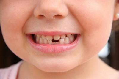 Сонник приснились зубы с кровью и без во сне к чему снятся зубы с кровью и без